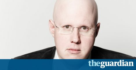 Matt Lucas: Losing my hair at the age of six  shaped my life